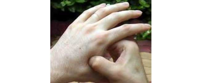 acupressure palm points