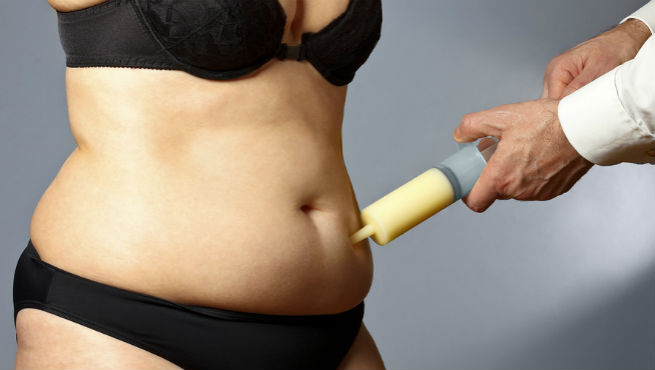 Liposuction Recovery
