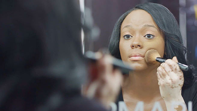 Conceal Vitiligo And Get A Flawless-Looking Skin With Makeup