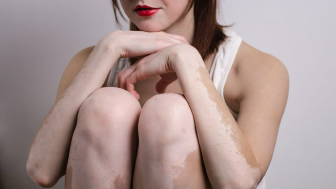 Vitiligo Prevention And Treatment