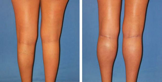 Calf Implants or Calf Augmentation Surgery - Before & After