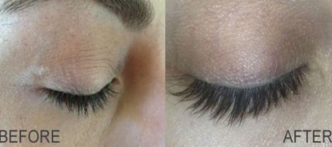 Latisse for Longer Eyelashes - Before & After Picture