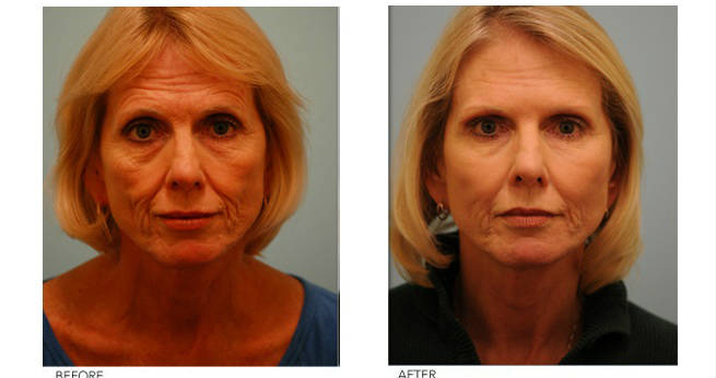 Fat Filler Injection - Before & After