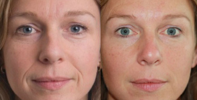 ArteFill Injections Before & After