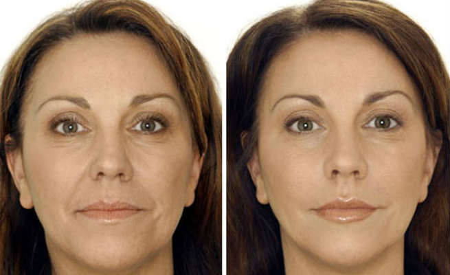 Botox - Before & After
