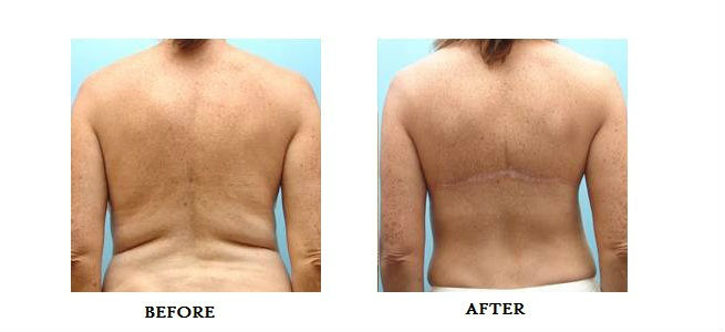 bra line back lift before after