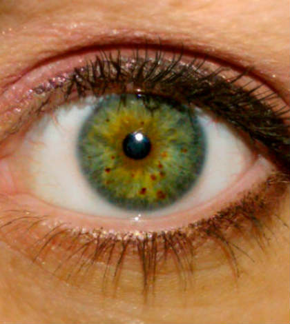 Brown Spots on Your Eye