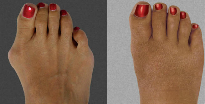 Cosmetic Foot Surgery Before & After