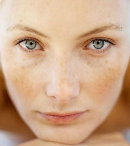 How to Fade Post Acne Red Marks, Dark Spots and Pigmentation