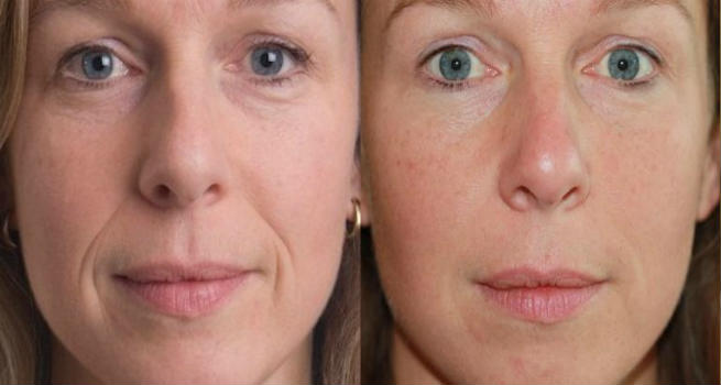 Cosmetic Dermal Fillers Before & After