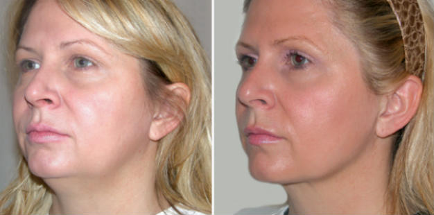 Facial Liposuction Before & After