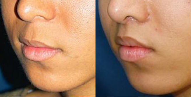 Lip Lifting Surgery Before & After
