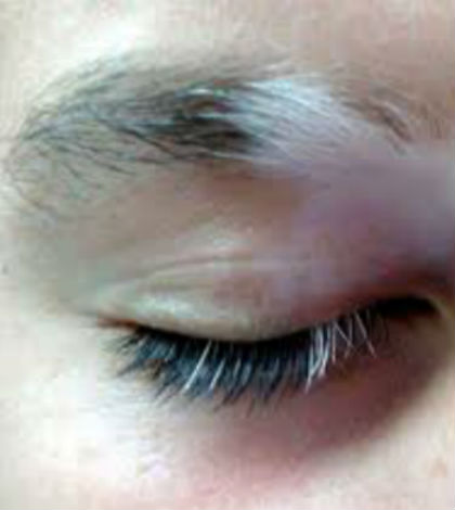 White Hairs in Eyebrows
