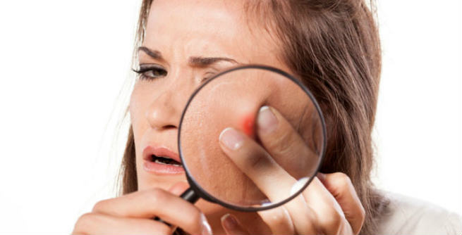 Washing Face Too Much Can Cause Acne