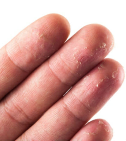 Home Remedies to Get Rid of Peeling Fingertips