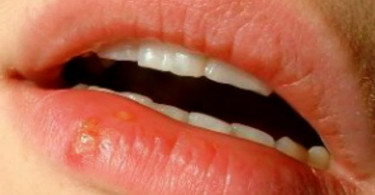Potential Causes and Useful Remedies of Cold Sores