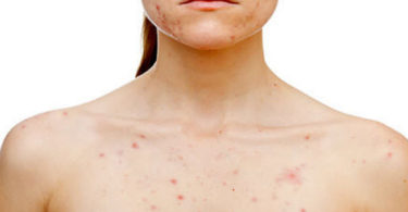 How To Prevent And Treat Body Acne Successfully?