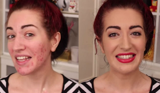 Learn Different Tricks To Cover Up Your Breakouts Easily