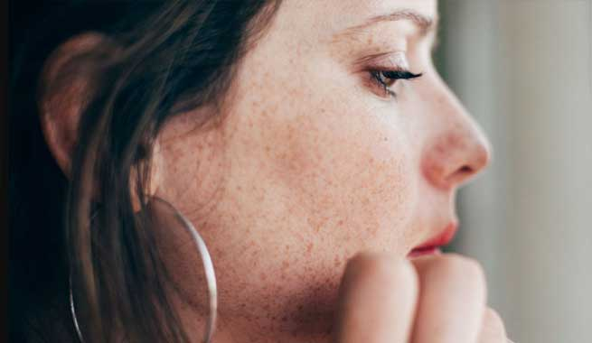 What Causes Nose Pimple & How Can I Treat It?