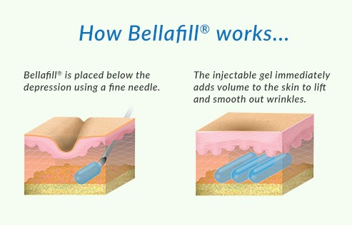 How Bellafill works